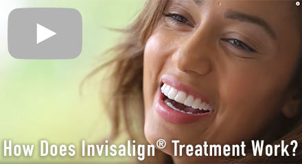 How does Invisalign® work?